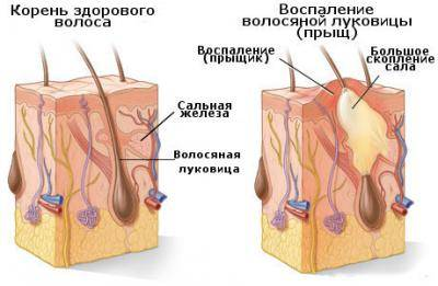 народные способы лечения холестерина семя льна