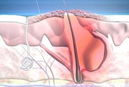 Что такое мезотерапия лечения акне