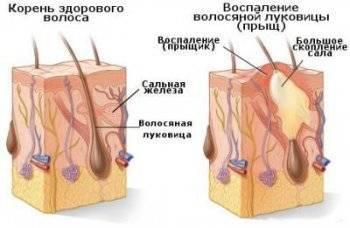 Гнойные прыщи на голове под волосами, причины и методы лечения