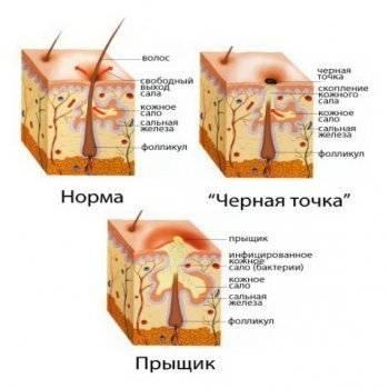 Подошвенные бородавки салициловая кислота