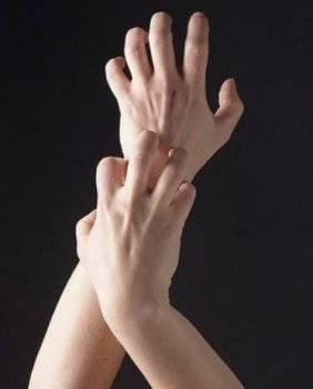 Прыщ на руке чешется
