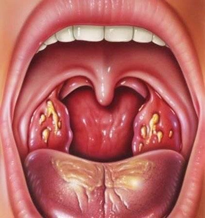 запах изо рта воспалении