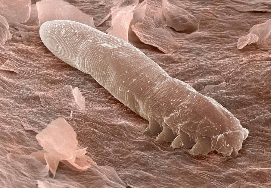 эффективные лекарства паразитов в организме