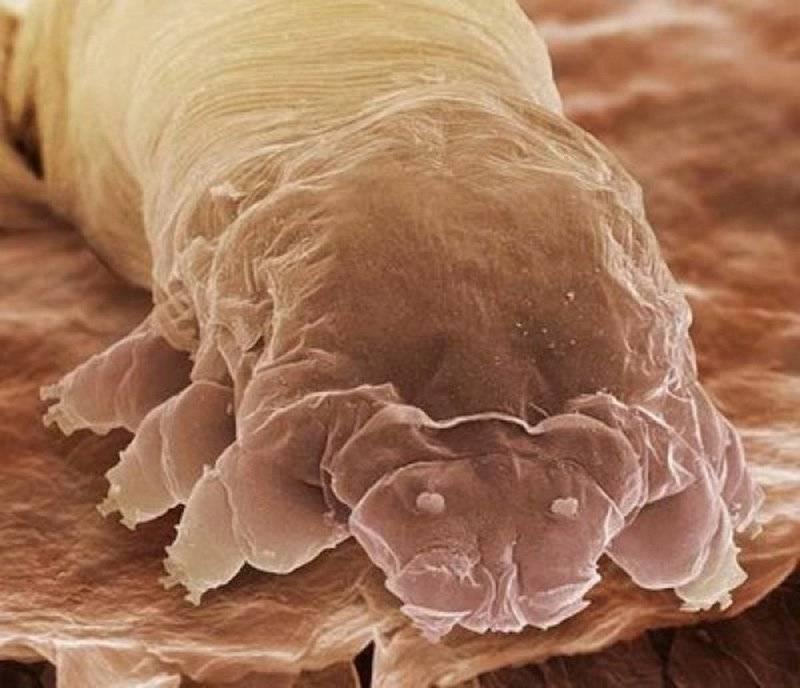 наличие паразитов в организме симптомы у ребенка