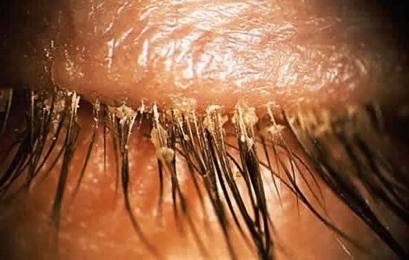 паразиты у человека под кожей