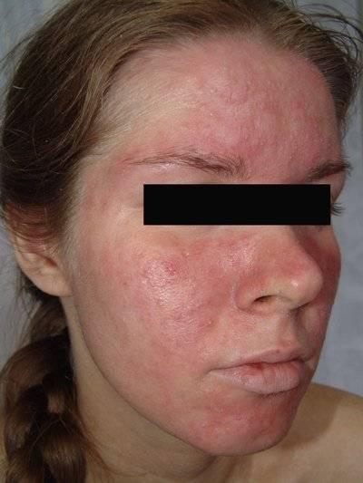 аллергия сыпь на щеках и руках