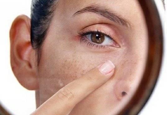 отчего на лице появляются пигментные пятна