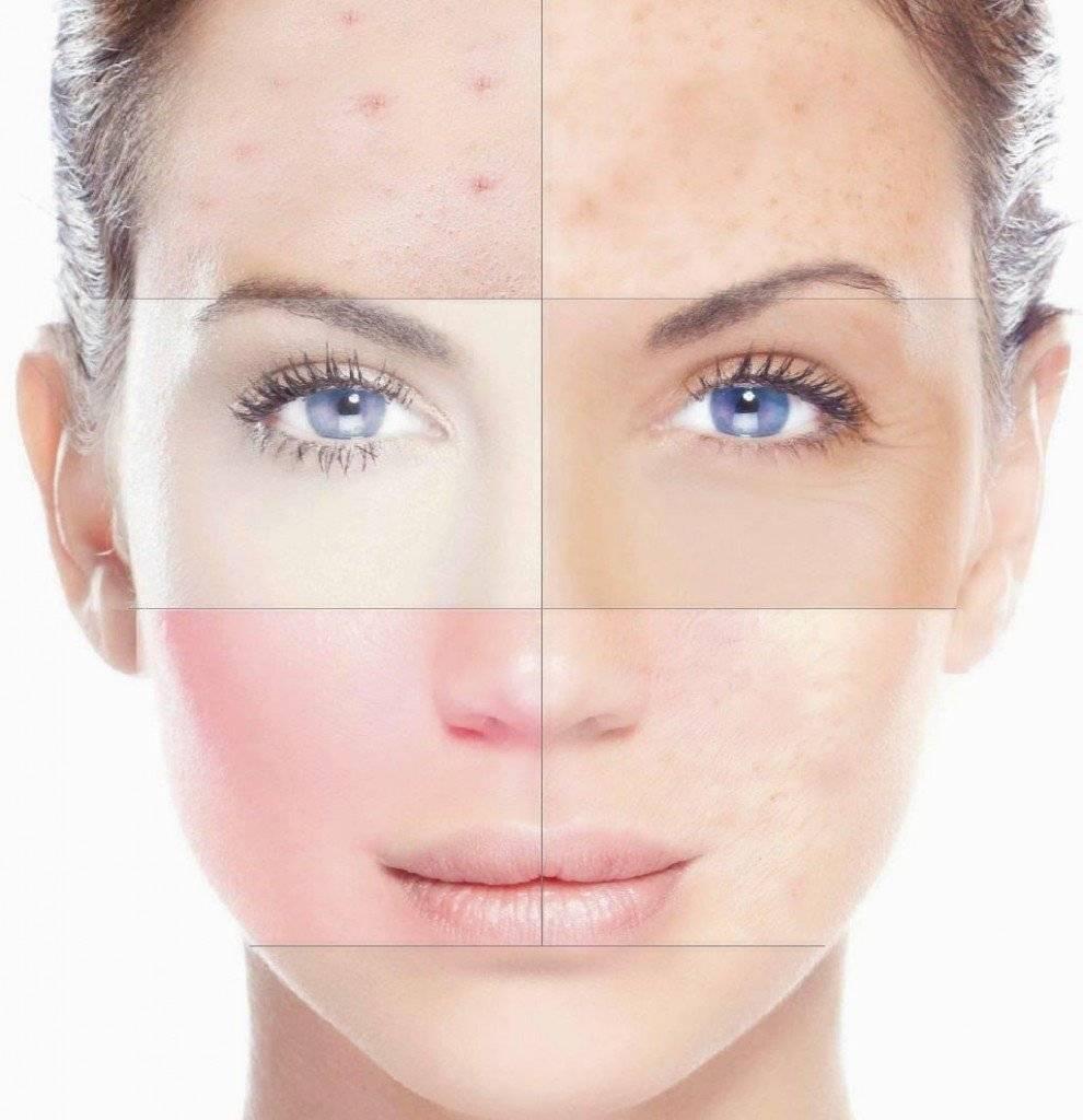 Как скрыть недостатки макияжем