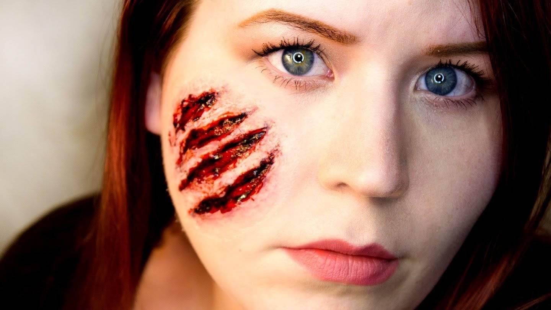 страшные шрамы на лице фото
