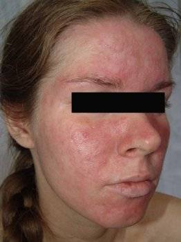 аллергия на тушь лечение