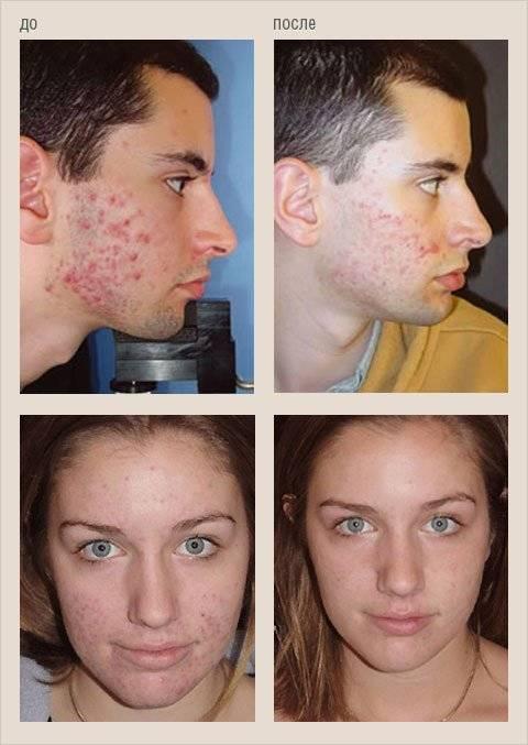 это демодекоз лечение кожи лица в домашних условиях материалами, которых шьют