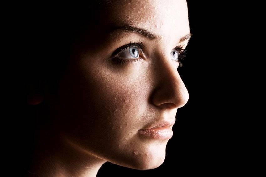 почему появляются черные точки на лице