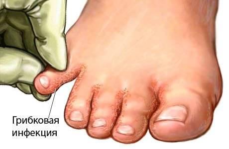 Лечить лишай грибок кожи