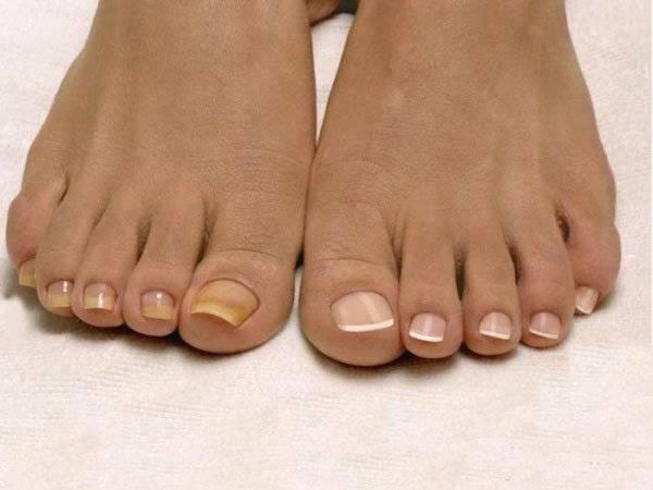 Микоз ногтей на ногах 39