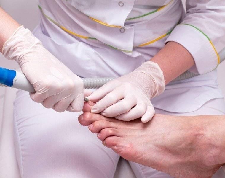 Вросший ноготь лечение лазером цена в днепропетровске