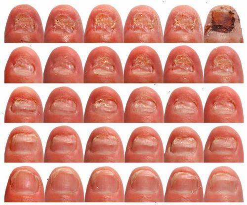 Эффективный препарат от грибка ногтей отзывы