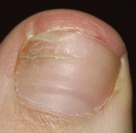 От грибка ногтей и стопы дешевое средство от