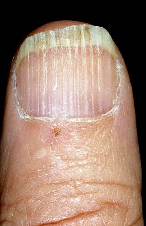 Капли от грибка ногтей на ногах список