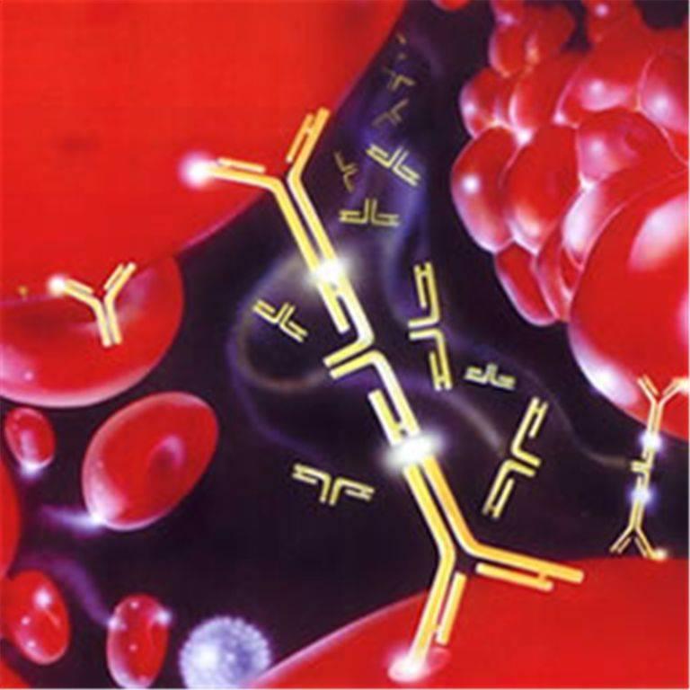 анализ крови высокий уровень холестерина