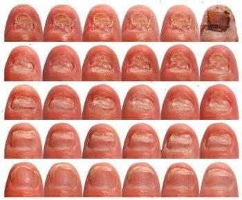 Местное лечение грибка ногтей при беременности