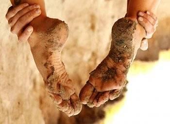 Как вылечить грибок ногтей больших пальцев на ногах