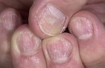 Псориаз на ногтях поражение ногтей при псориазе на руках причины и лечение