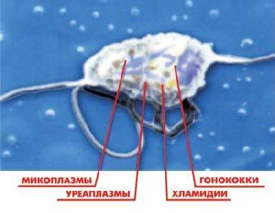Кольпит при беременности – классификация за видами, формы и признаки