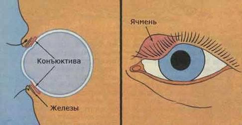 Как лечить ячмень на глазу в активной стадии воспаления?