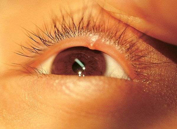 Что такое ячмень на глазу его