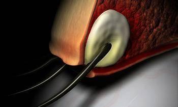 Ячмень на глазу: лечение и профилактика