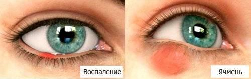 Проверенные способы и рецепты, как лечить ячмень на глазу