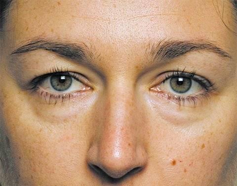 Почему появляются мешки под глазами: патологические причины