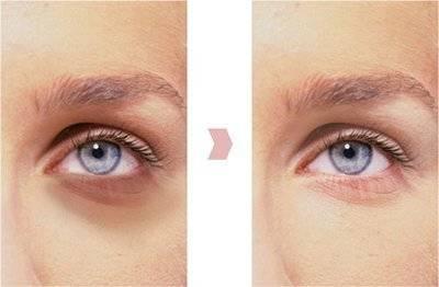 Почему мешки под глазами появляются у здоровых людей