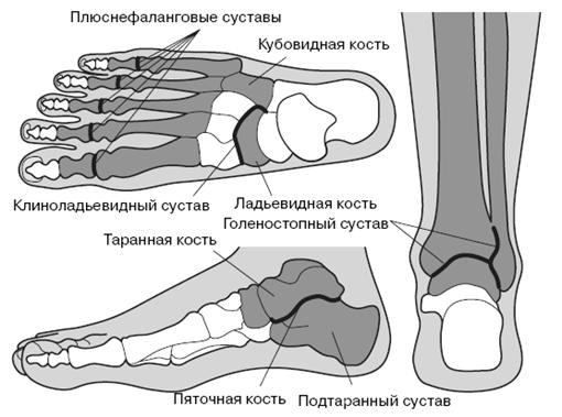 Скованность боль в коленном суставе лечение