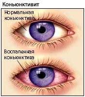 Отек глаз: причины появления