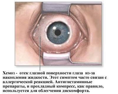 Воспалительные отеки глаз