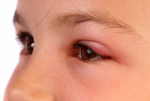 Почему появляется отек верхнего века одного глаза