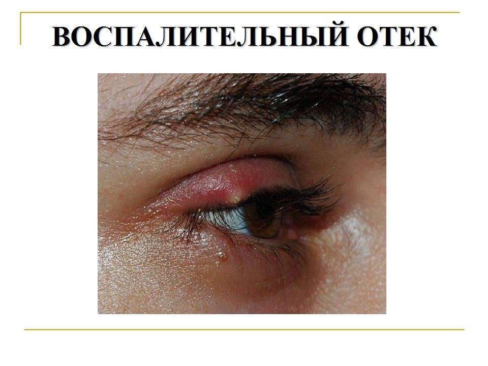 Особенность кожи под глазами