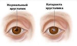 Катаракта глаз – основные причины