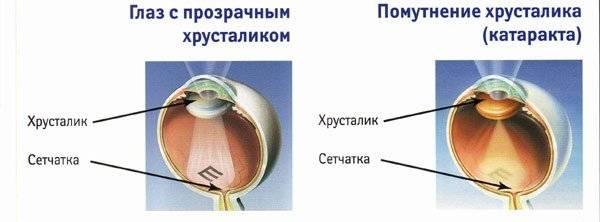 Катаракта глаз – симптомы и стадии