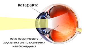 Катаракта глаз – диагностика