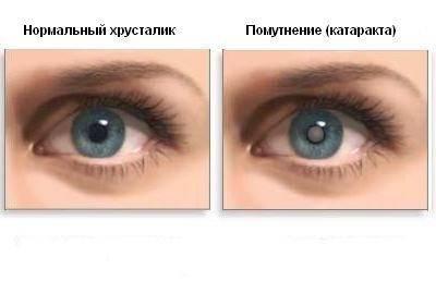 Катаракта глаз – консервативное и хирургическое лечение