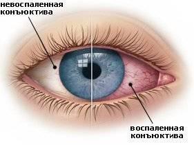 Что можно предпринять, если краснеют глаза?