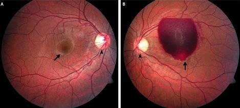 Кровоизлияние в глаз – симптомы