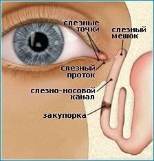 Воспалился глаз у ребенка – дакриоцистит?