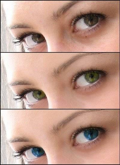 Как изменить цвет глаз хирургическим путем?