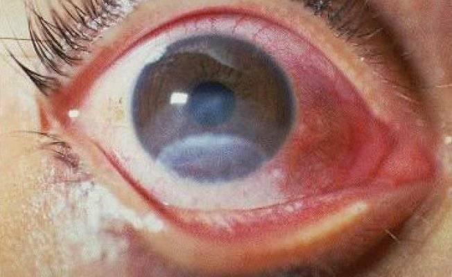Какую функцию выполняет роговица глаза и что делать в случае ее ...