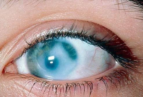 Роговица глаза: лечение и профилактика заболеваний