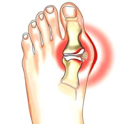 сустав на ноге палец боль