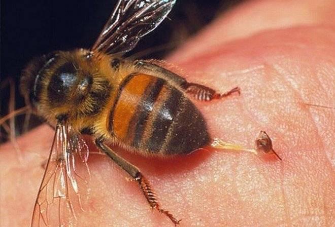 аллергия на блох у человека лечение отзывы